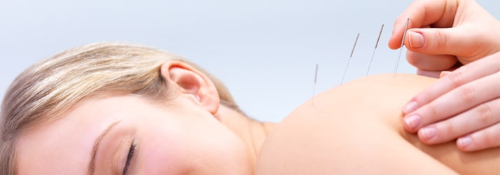 Acupuncture Silverdale WA